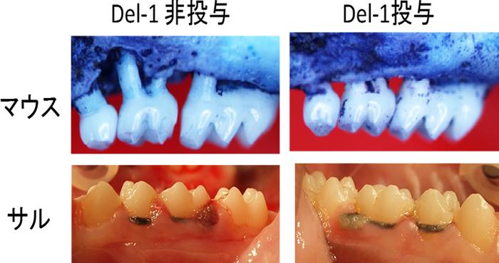 図2 Del-1による歯周病治療法の可能性の検索